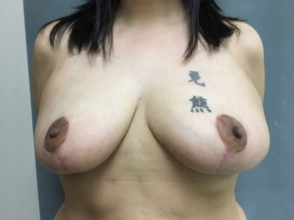 Breast Reduction Before & After Patient #5580