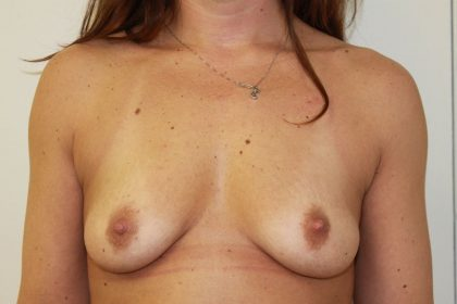 Breast Augmentation Before & After Patient #5583