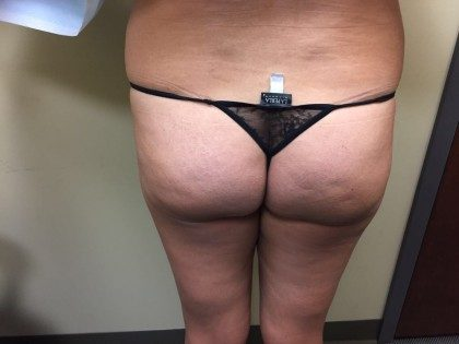 Brazilian Butt Lift Before & After Patient #5593