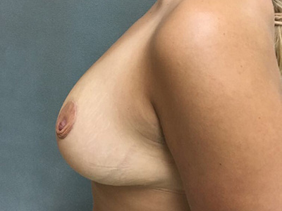 Breast Reduction Before & After Patient #5725