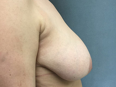Breast Reduction Before & After Patient #5720