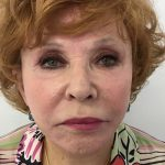 Facelift Before & After Patient #5732