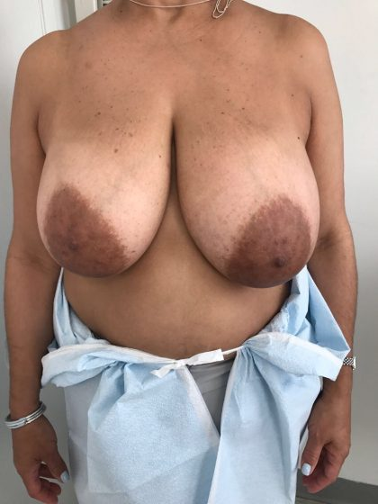 Breast Reduction Before & After Patient #5953