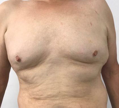 Gynecomastia Before & After Patient #5962