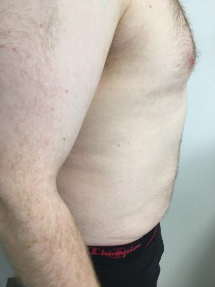 Liposuction Before & After Patient #5981