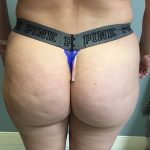 Brazilian Butt Lift Before & After Patient #6001
