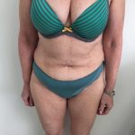 Tummy Tuck Before & After Patient #6044