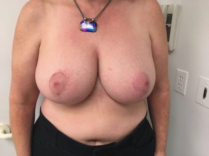 Breast Reduction Before & After Patient #6033