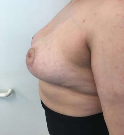 Breast Reduction Before & After Patient #6024