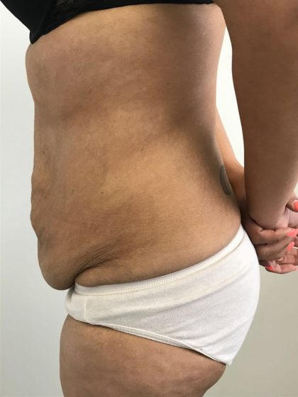 Tummy Tuck Before & After Patient #6051