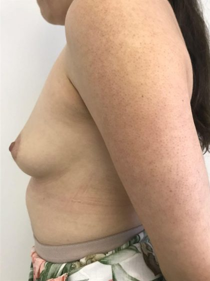 Breast Augmentation Before & After Patient #6124