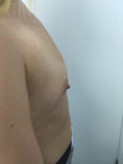 Breast Augmentation Before & After Patient #6132