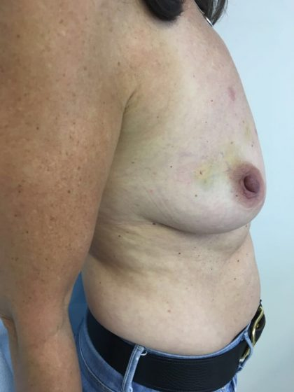 Breast Reconstruction Before & After Patient #6185