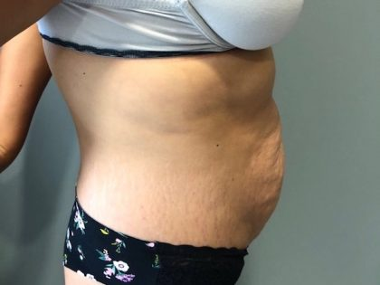 Tummy Tuck Before & After Patient #6253