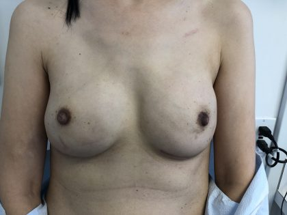 Breast Reconstruction Before & After Patient #6283