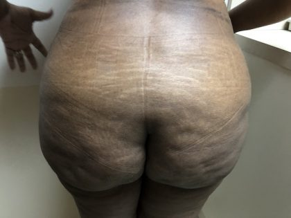 Brazilian Butt Lift Before & After Patient #6297