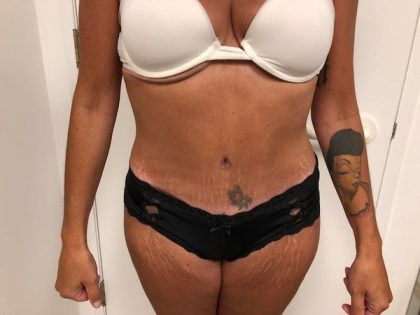 Tummy Tuck Before & After Patient #6313