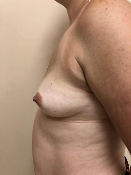 Breast Augmentation Before & After Patient #6348
