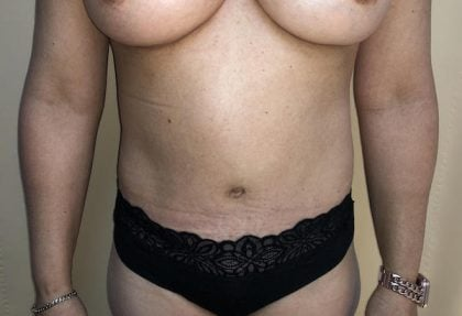 Tummy Tuck Before & After Patient #6341