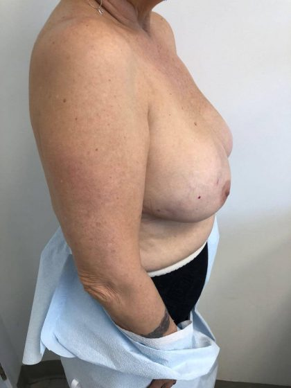 Breast Reconstruction Before & After Patient #6362