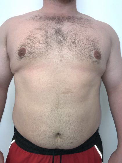 Gynecomastia Before & After Patient #6408