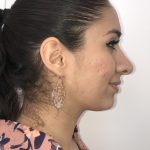 Rhinoplasty Before & After Patient #6394