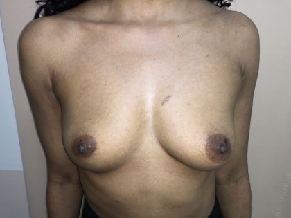 Breast Augmentation Before & After Patient #6401