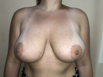 Breast Augmentation Before & After Patient #6496