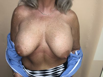 Breast Reduction Before & After Patient #6549