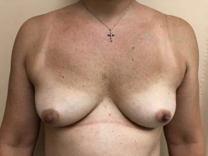 Breast Augmentation Before & After Patient #6537
