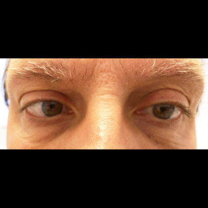 Eyelid Surgery Before & After Patient #6689